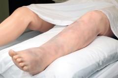 S2200.101 Deep Vein Thrombosis Leg for Victoria (DVT)