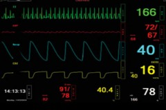 S3040.100.600 Auto Physiologic Mode