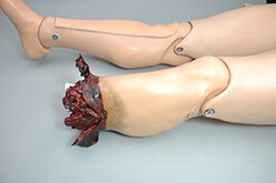 Traumatic Leg Amputation for HAL S3201 (S3201.004)